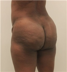 Buttock Lift with Augmentation Before Photo by Ravi Somayazula, DO; Houston, TX - Case 36630