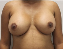Breast Augmentation After Photo by Ravi Somayazula, DO; Houston, TX - Case 36631