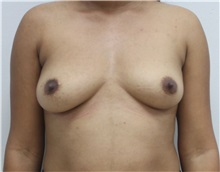 Breast Augmentation Before Photo by Ravi Somayazula, DO; Houston, TX - Case 36631