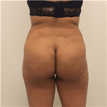 Buttock Lift with Augmentation Before Photo by Ravi Somayazula, DO; Houston, TX - Case 41264