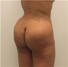 Buttock Lift with Augmentation After Photo by Ravi Somayazula, DO; Houston, TX - Case 41264