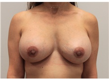 Breast Implant Revision After Photo by Ravi Somayazula, DO; Houston, TX - Case 41265