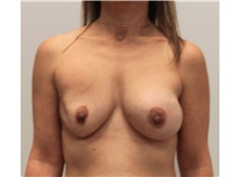 Breast Implant Revision Before Photo by Ravi Somayazula, DO; Houston, TX - Case 41265