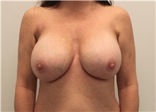 Breast Implant Revision After Photo by Ravi Somayazula, DO; Houston, TX - Case 41266