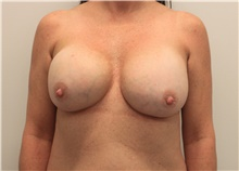 Breast Implant Revision Before Photo by Ravi Somayazula, DO; Houston, TX - Case 41266