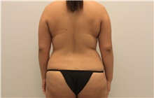 Liposuction Before Photo by Ravi Somayazula, DO; Houston, TX - Case 41268