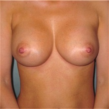 Breast Augmentation After Photo by Richard Kutz, MD, MPH, FACS; South Portland, ME - Case 37302