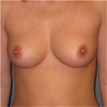 Breast Augmentation Before Photo by Richard Kutz, MD, MPH, FACS; South Portland, ME - Case 37302