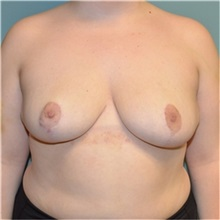 Breast Reduction After Photo by Richard Kutz, MD, MPH, FACS; South Portland, ME - Case 37305