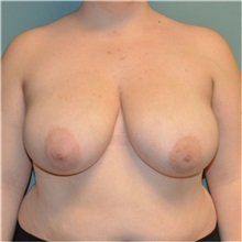 Breast Reduction Before Photo by Richard Kutz, MD, MPH, FACS; South Portland, ME - Case 37305