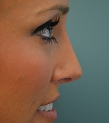 Rhinoplasty After Photo by Richard Kutz, MD, MPH, FACS; South Portland, ME - Case 37313