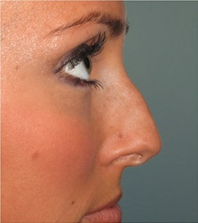 Rhinoplasty Before Photo by Richard Kutz, MD, MPH, FACS; South Portland, ME - Case 37313