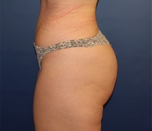 Buttock Implants After Photo by Richard Reish, MD, FACS; New York, NY - Case 30551