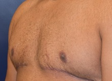 Male Breast Reduction After Photo by Richard Reish, MD, FACS; New York, NY - Case 30554