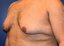Male Breast Reduction Before Photo by Richard Reish, MD, FACS; New York, NY - Case 30554