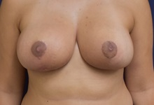 Breast Reduction After Photo by Richard Reish, MD, FACS; New York, NY - Case 30556