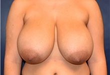 Breast Reduction Before Photo by Richard Reish, MD, FACS; New York, NY - Case 30556
