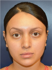 Rhinoplasty After Photo by Richard Reish, MD, FACS; New York, NY - Case 30557