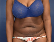 Tummy Tuck Before Photo by Richard Reish, MD, FACS; New York, NY - Case 30559