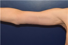 Arm Lift After Photo by Richard Reish, MD, FACS; New York, NY - Case 30561