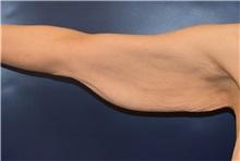 Arm Lift Before Photo by Richard Reish, MD, FACS; New York, NY - Case 30561