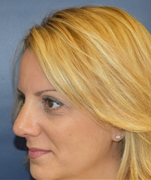 Rhinoplasty After Photo by Richard Reish, MD, FACS; New York, NY - Case 30562