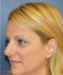 Rhinoplasty Before Photo by Richard Reish, MD, FACS; New York, NY - Case 30562