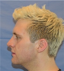 Rhinoplasty After Photo by Richard Reish, MD, FACS; New York, NY - Case 30565