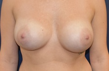 Breast Augmentation After Photo by Richard Reish, MD, FACS; New York, NY - Case 30568