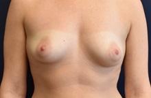 Breast Augmentation Before Photo by Richard Reish, MD, FACS; New York, NY - Case 30568