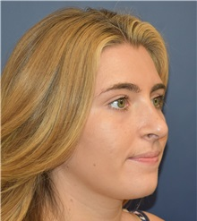Rhinoplasty After Photo by Richard Reish, MD, FACS; New York, NY - Case 30570