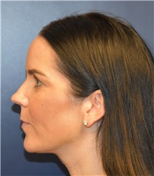 Liposuction After Photo by Richard Reish, MD, FACS; New York, NY - Case 30572