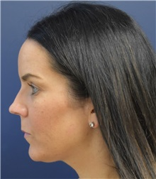 Liposuction Before Photo by Richard Reish, MD, FACS; New York, NY - Case 30572