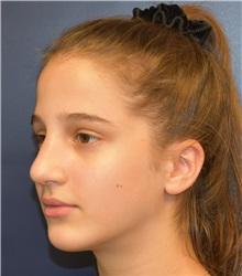 Rhinoplasty After Photo by Richard Reish, MD, FACS; New York, NY - Case 30574