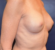 Breast Augmentation After Photo by Richard Reish, MD, FACS; New York, NY - Case 30575