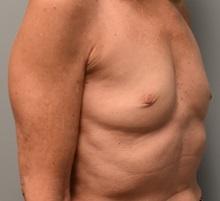 Breast Augmentation Before Photo by Richard Reish, MD, FACS; New York, NY - Case 30575