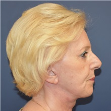 Facelift After Photo by Richard Reish, MD, FACS; New York, NY - Case 30576