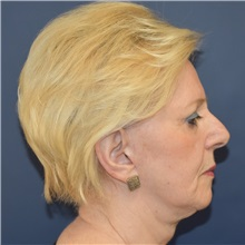 Facelift Before Photo by Richard Reish, MD, FACS; New York, NY - Case 30576