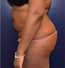 Buttock Implants Before Photo by Richard Reish, MD, FACS; New York, NY - Case 30578