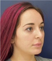 Rhinoplasty After Photo by Richard Reish, MD, FACS; New York, NY - Case 30579