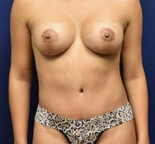 Tummy Tuck After Photo by Richard Reish, MD, FACS; New York, NY - Case 30778