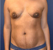 Tummy Tuck Before Photo by Richard Reish, MD, FACS; New York, NY - Case 30778