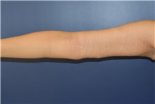 Arm Lift After Photo by Richard Reish, MD, FACS; New York, NY - Case 30791