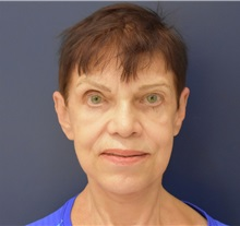 Facelift After Photo by Richard Reish, MD, FACS; New York, NY - Case 30794