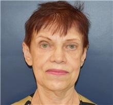 Facelift Before Photo by Richard Reish, MD, FACS; New York, NY - Case 30794