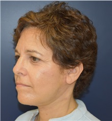 Facelift After Photo by Richard Reish, MD, FACS; New York, NY - Case 30797