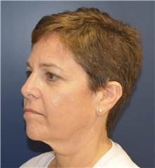 Facelift Before Photo by Richard Reish, MD, FACS; New York, NY - Case 30797