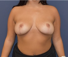 Breast Reduction After Photo by Richard Reish, MD, FACS; New York, NY - Case 30800
