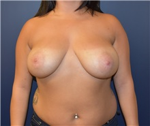 Breast Reduction Before Photo by Richard Reish, MD, FACS; New York, NY - Case 30800
