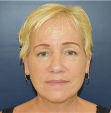 Facelift After Photo by Richard Reish, MD, FACS; New York, NY - Case 30801